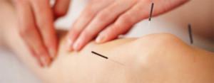 Acupuncture Thornhill